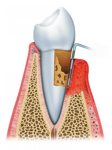 gum disease advanced periodontitis