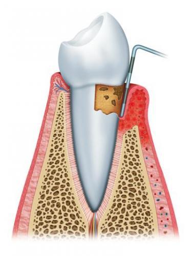 gum disease vingivitis