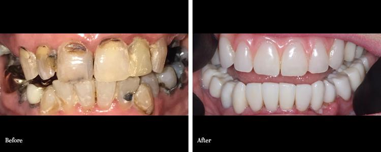Upper Fixed Hybrid Denture and Lower Crowns and Bridges